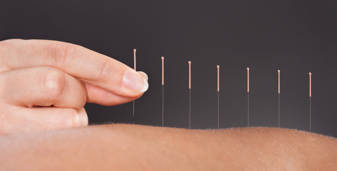 Acupuncture treatments occur 2 times per week for 5 weeks